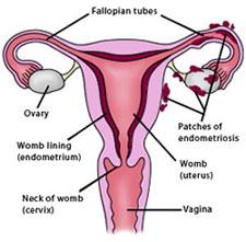 acupuntura olesa endometriosi